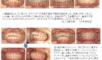 上顎前突(出っ歯)・犬低(八重歯)