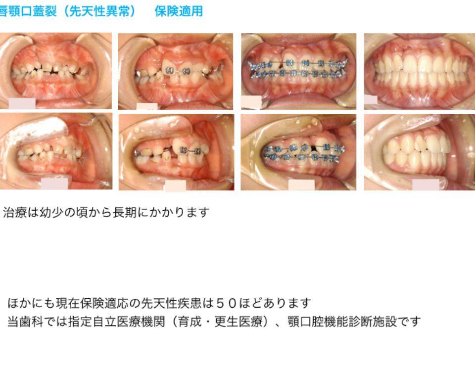 唇顎口蓋裂(先天異常)